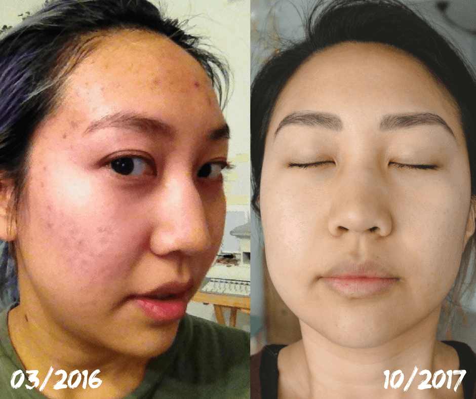 before after acne food allergies acid reflux clear skin food allergy acne