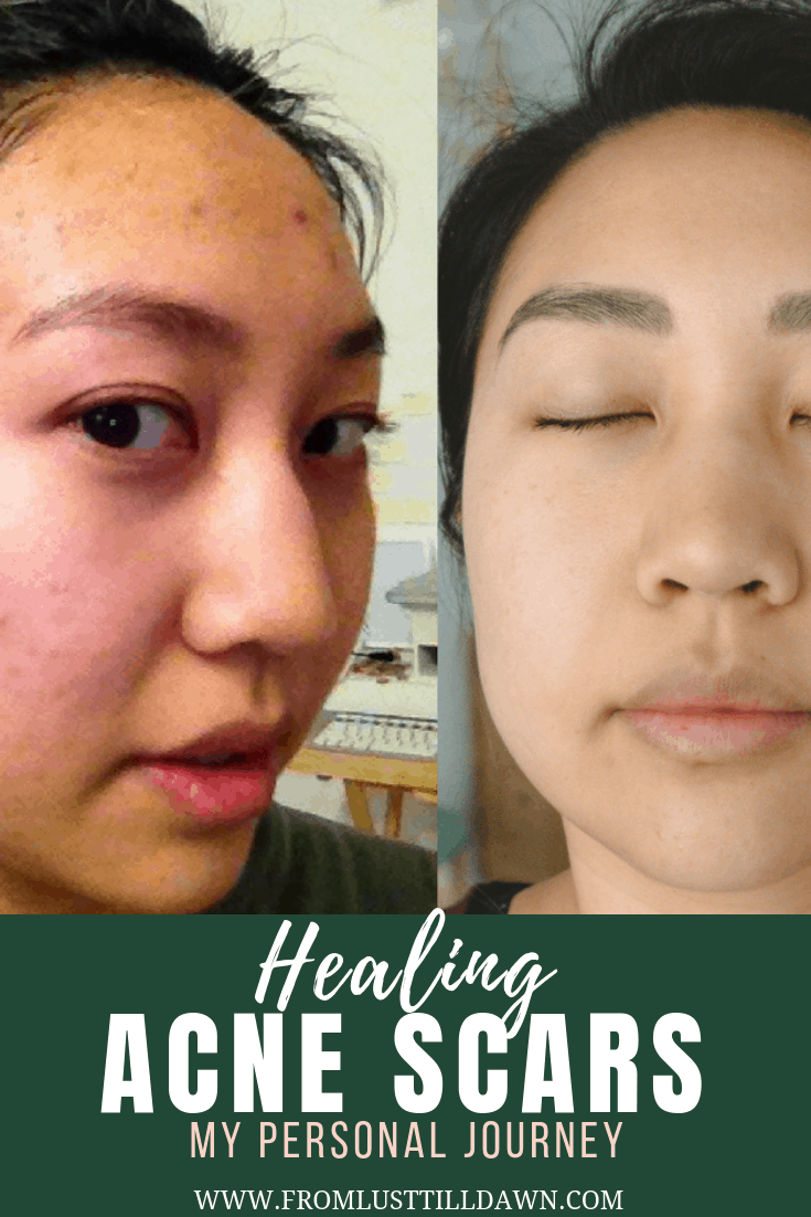 Lifestyle blogger Sarah Kim of Lust 'Till Dawn shares her journey of healing acne scars with Dermaquest products.